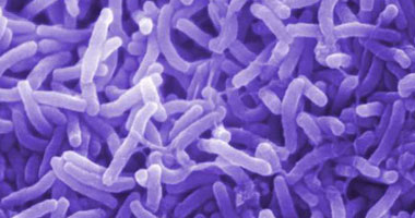 مصرع 10 أشخاص إثر تفشى وباء الكوليرا فى زيمبابوى