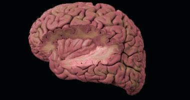 مرض السكر يسبب تشابك المخ بصورة مختلفة عما يسببه مرض الزهايمر