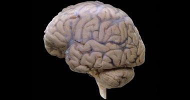 التحفيز الكهربائى لخلايا المخ قد يساعد مرضى الفصام
