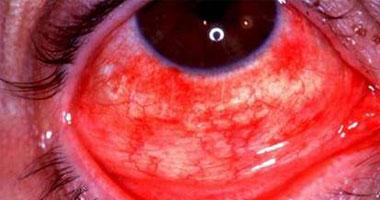ما هو مرض ملتحمة العين؟.. وما طرق الوقاية ؟