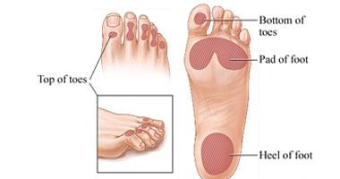 نصائح طبية حول القدم السكرى S10201027101047