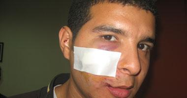 محمد السمان أحد الذين تعرضوا للاعتداء فى السودان