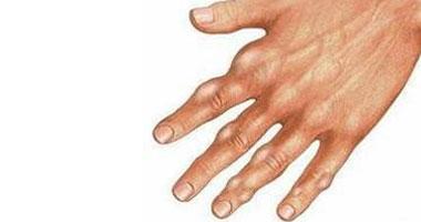 أعراض مرض النقرس والطعام المناسب للمريض اليوم السابع