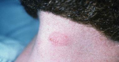 أحدث العلاج لمرض التينيا؟
