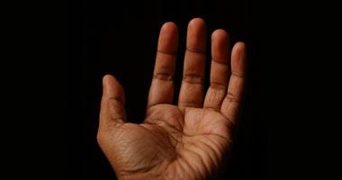 نصائح لتجنب اليدين المشققة الطقس