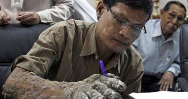 رجل الشجرة يخضع لتاسع جراحة لإزالة زوائد جذعية