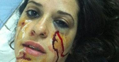 الناشطة سلمى سعيد ابنه منسق أطباء بلا حقوق بعد إصابتها