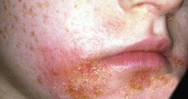 """طبيبة فرنسية: """"دوبيكنت"""" أحدث عقار لعلاج الإكزيما الجلدية"""