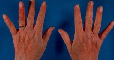 علامات تكشف الإصابة بمرض حساسية الدم