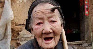 ديلى ميرور:قرنا شيطان يخرجان من رأس امرأة صينية