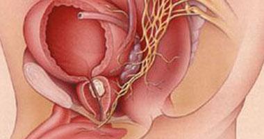 أعراض سرطان البروستاتا.. أبرزها احتباس البول