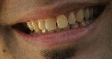 وصفات طبيعية لعلاج صفرة الأسنان