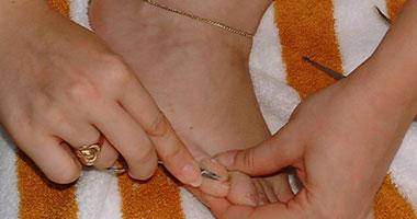 المشكلة تظهر بالجلد الضعيف - صورة ارشيفية