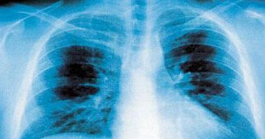 أعراض التهاب الرئة وتأثير نوع الجرثومة على انتقال العدوى اليوم السابع