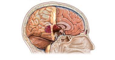 سرطان المخ.. أعراضه وأسبابه وعلاجه