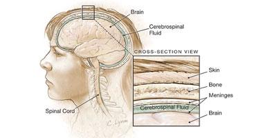كيف يتطور الالتهاب السحائى؟ s920101204520.jpg