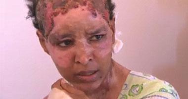 الخادمة التى تم تعذيبها على يد زوجة هانيبال القذافى