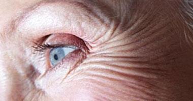هل يمكن إجراء عمليات تصحيح الإبصار لمرضى القرنية المخروطية؟