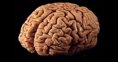 مخ بشرى_أرشيفية