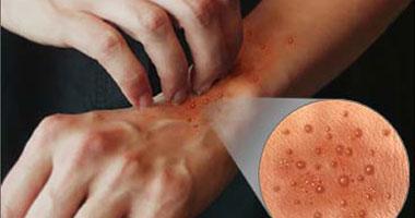 ما أسباب حدوث حساسية الجلد؟ smal11201017193222.j