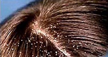 تناول بعض الأدوية يقلل من قشرة الشعر