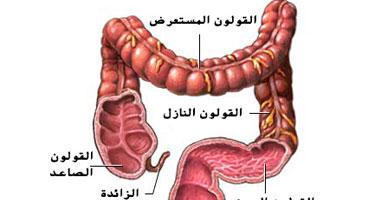 الالتهابات المناعية فى القولون عادة ما تكون وراثية