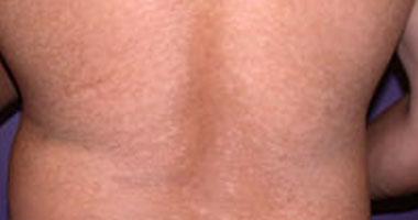 أسباب الطفح الجلدي الحكة smal320101613453.jpg