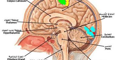 أستاذ مخ وأعصاب يقدم 6 طرق أساسية تؤدى للإصابة بالجلطة الدماغية