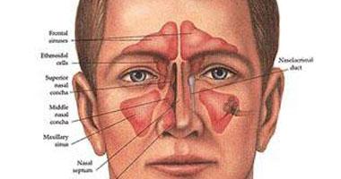 تعرف على دور الأشعة المقطعية فى أمراض الجيوب الأنفية وجراحتها