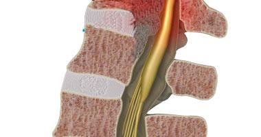 هناك 3 مناطق تتأثر بإصابة النخاع الشوكى