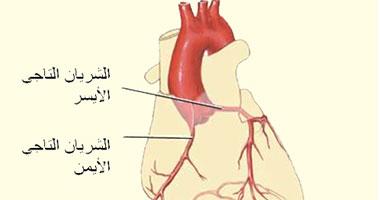 تحذير لمرضى الشريان التاجى.. حرارة الجو تعرضكم للإصابة بالذبحة الصدرية