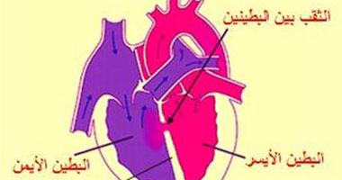 عضلة قلبى ضعيفة هل يمكن أن تعود إلى كفاءتها؟