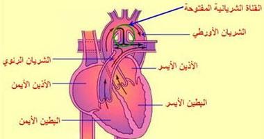 للوقايه امراض القلب النظام الغذائى الواجب اتباعه للوقاية أمراض القلب؟
