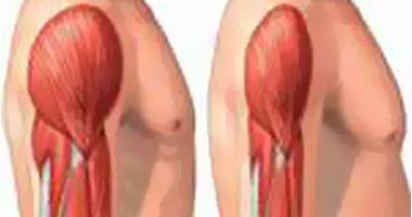 4 أسباب مسئولة عن ضعف العضلات.. اعرف إزاى تتجنبها