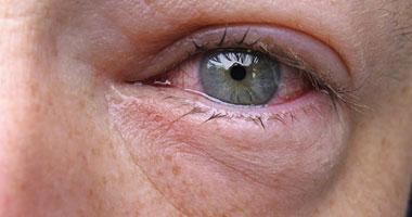 أخصائية عيون تنصح بـ5 طرق لعلاج انتفاخ العينين اليوم السابع