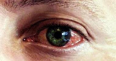 4 وصفات طبيعية لمعالجة احمرار وحكة العين