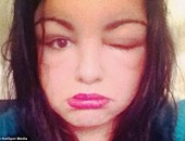 بالصور.. فتاة بريطانية تصاب بالعمى بسبب استخدام صبغة شعر