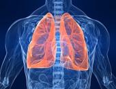 أستاذ أمراض صدرية: الأشعة المقطعية قادرة على تشخيص سرطان الرئة بدقة