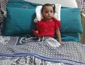 بالصور.. نجاح جراحة قلب نادرة لطفلة عمرها سنة بمستشفى جامعة المنصورة