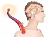 دراسة: التفكير الأنانى يقلل القدرة على ضبط النفس