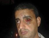 """""""صحافة المواطن"""".. قارئ يشكو اعتداء الشرطة على مواطن بـ""""وراق الحضر"""""""