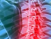 لماذا يحدث الانزلاق الغضروفى وهل يمكن علاجه؟