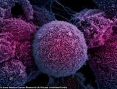 العمل لوقت متأخر ليلا وزيادة الوزن يرفعان فرص الإصابة بالسرطان
