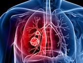 وكالات صحية عالمية: الالتهاب الرئوى يقتل طفلا كل 39 ثانية