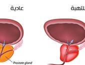 اعراض التهاب البروستاتا أهمها القذف المؤلم