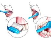 نصائح لحماية الأسنان من التسوس أهمها نضف لسانك وشفايفك