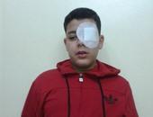 إصابة تلميذ فى طنطا بجرح بشبكية العين أثناء فض مشاجرة بين زميليه