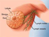 تقنية جديدة للكشف المبكر عن مرض سرطان الثدى بجامعة المنوفية