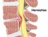أمراض العظام.. 6 طرق لعلاج وتغذية الغضروف