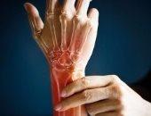 أستاذ روماتيزم: التدفئة أول علاج لمرضى متلازمة رينوت فى الشتاء
